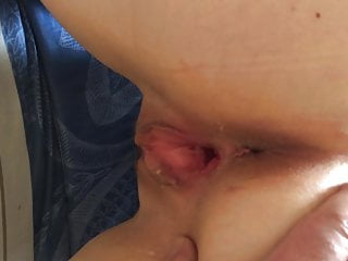 My Wife' insertion